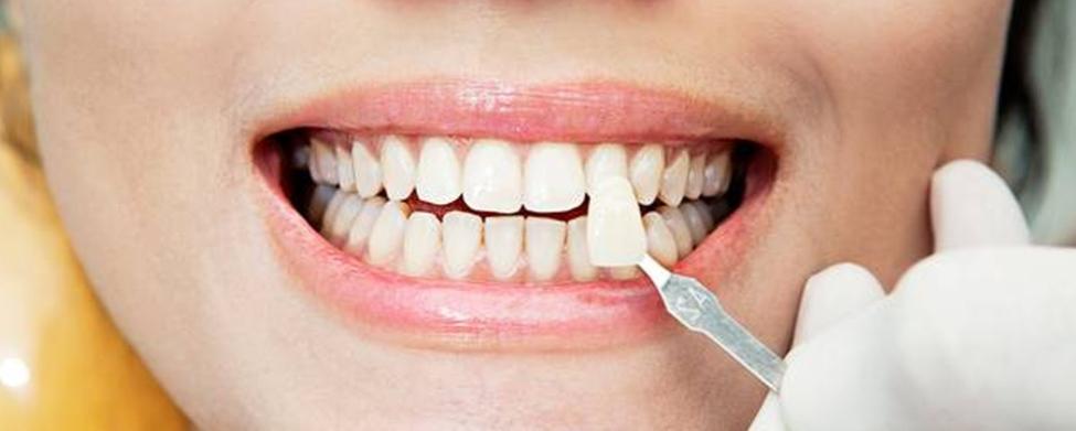 Как отреставрировать зуб?